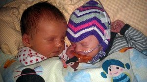twin birth stories