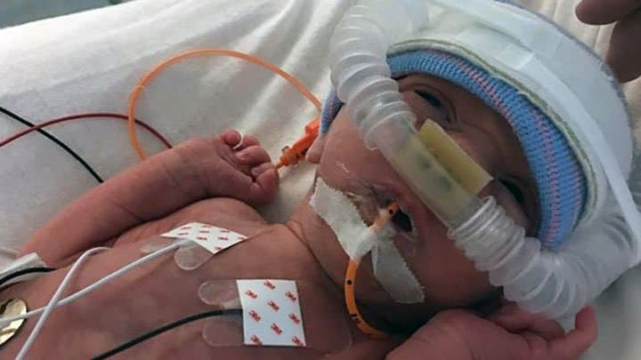 Twin born at 32 weeks