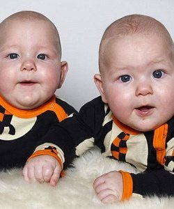 Twins Born at 33 Weeks: Outlook And Special Care - About Twins